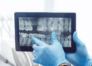 Digtal dental x-rays