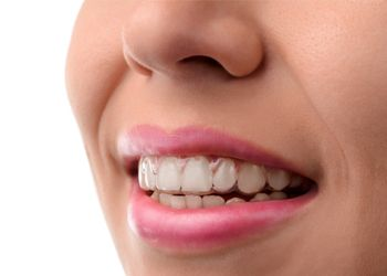woman wearing clear aligner