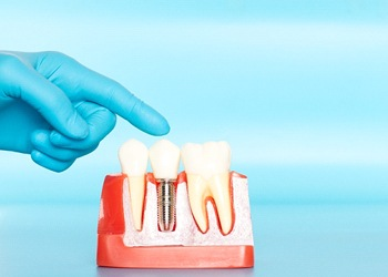 A person pointing to a mold with teeth and a dental implant